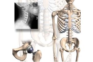 Orthopaedics, Arthroscopy & Joint Replacement-