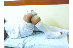JOINT REPLACEMENT AND AURTHOSCOPY CENTER